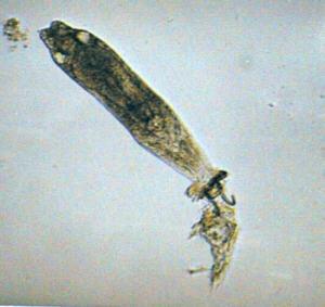 魚に取りついた繊毛虫の顕微鏡写真