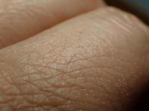 指毛の拡大